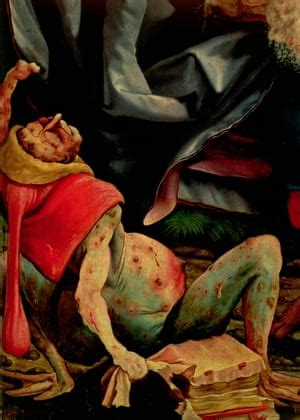 Should hospital art be jolly – or should it portray the