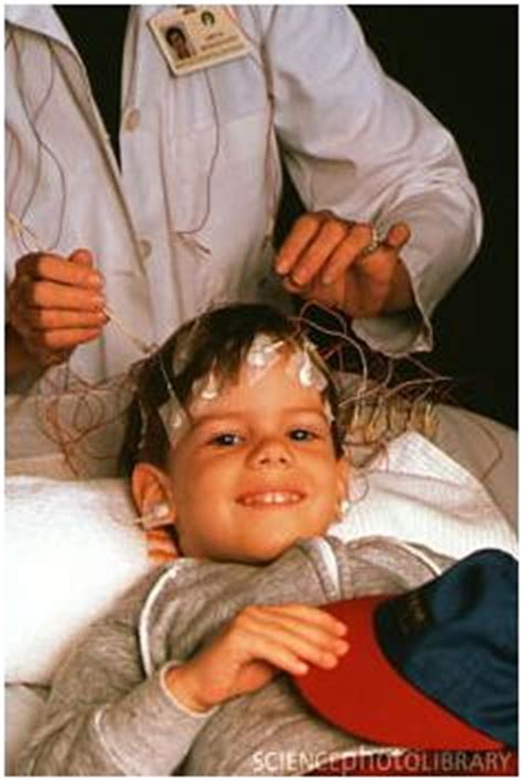 How Likely Am I to Suffer From Petit Mal Seizures? - Grand
