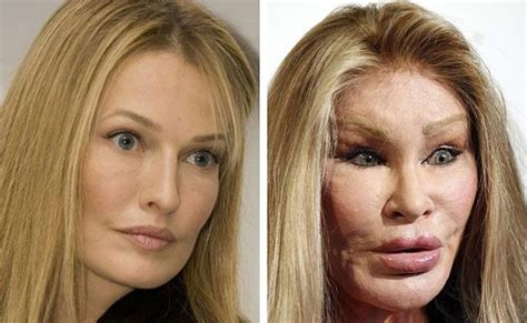 10 Craziest Plastic Surgeries You Have to See to Believe